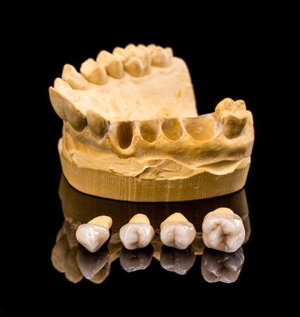 artificial teeth: Ceramic dental implants and gypsum layout