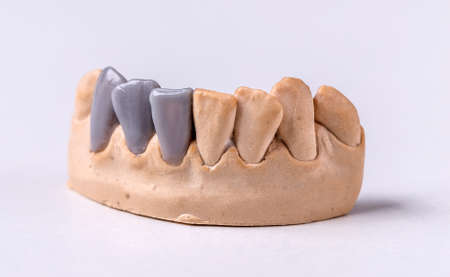prothesis: Wax dental prosthesis on the chalk model