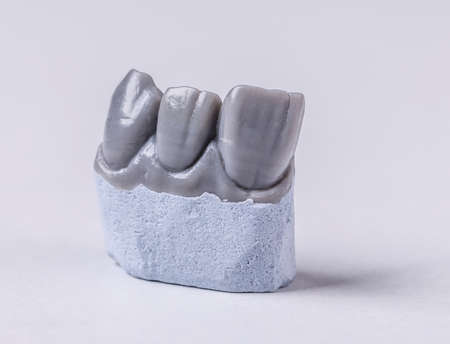 prothesis: Artificial tooth, wax model on white background Stock Photo
