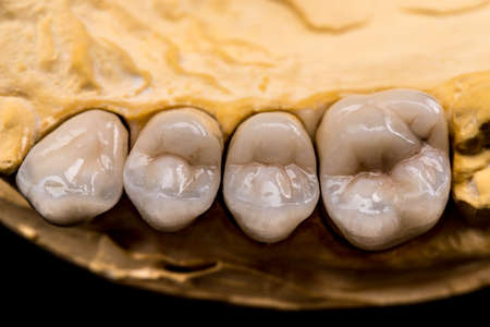 prothesis: Denture made of ceramics located on plaster model