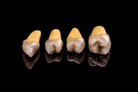 prosthetic: Prosthetic teeth on black background Stock Photo