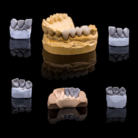 prothetic: Artificial tooth, plaster and wax models