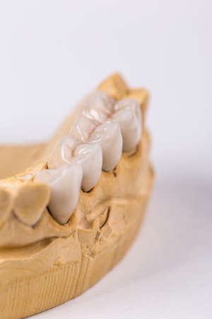 prothesis: Closeup of artificial teeth on table in workshop