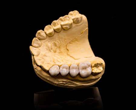 prothesis: Top view of artificial teeth on black background Stock Photo