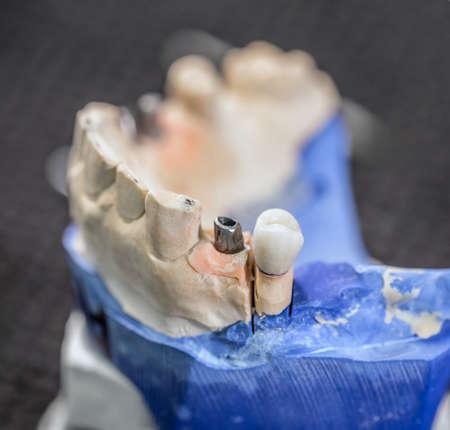 falso: Los dientes postizos en la mand�bula de yeso Foto de archivo