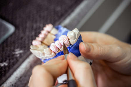 fabricating: Dental technician working in dental laboratory