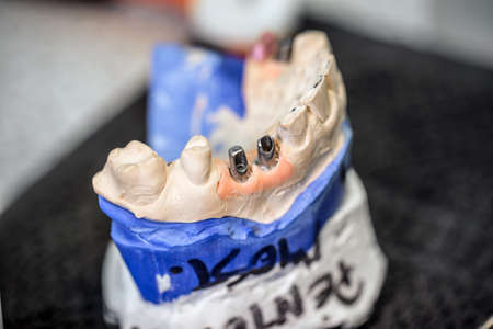 implants: Dental implants in dental model