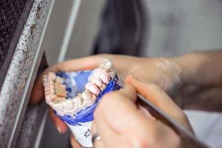fix jaw: Dental technician working on a jaw model
