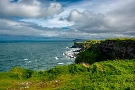 northern ireland: Dunluce Castle in Northern Ireland Stock Photo
