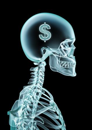 dollar symbol: X-ray dollar  3D render of x-ray showing dollar symbol inside head