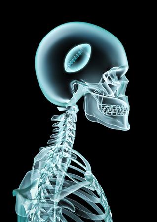 ●頭の中にアメリカンフットボールを見せるスケルトンX線のX線アメフトファン3Dイラスト