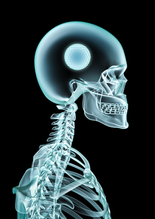X-ray golf fan  3D illustration of skeleton x-ray showing golf ball inside head