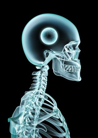 X-ray soccer fan  3D illustration of skeleton x-ray showing soccer ball inside head