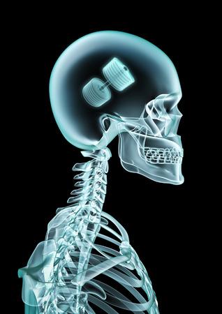 X-ray dumbbell fan  3D illustration of skeleton x-ray showing dumbbell inside head
