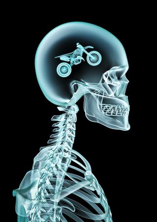 X-ray motocross fan of human skeleton x-ray showing dirt bike inside head
