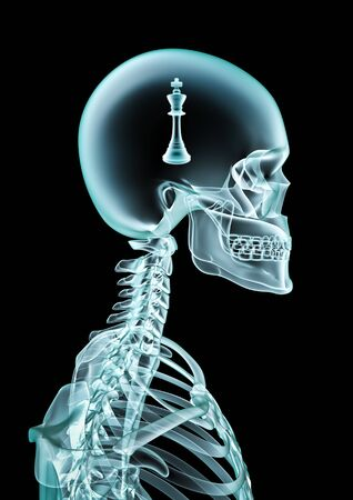 X-ray chess of human skeleton x-ray showing chess piece inside head 스톡 콘텐츠