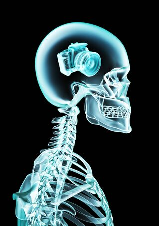 X-ray photographic memory of human skeleton x-ray showing digital camera inside head