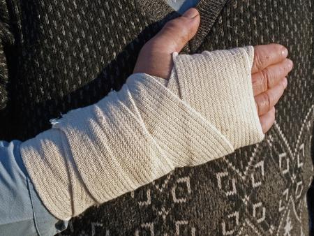 bandaged: Hand joint bandaged by elastic,  flexible bandage