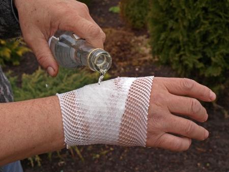 bandaged: Making alcohol compress on bandaged wrist, close up         Stock Photo