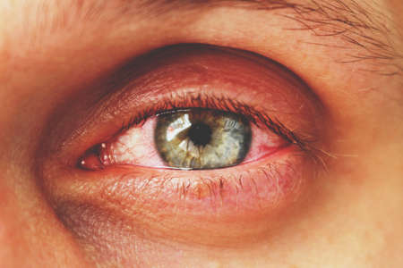 red eye of a patient with human conjunctivitis, retro toned 免版税图像 - 104625743