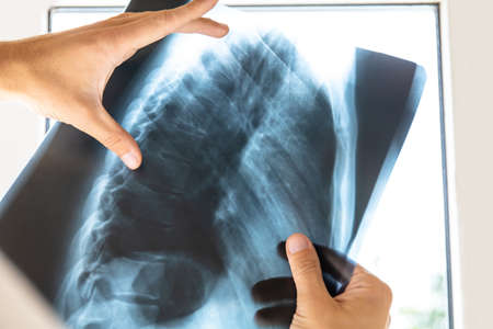 doctor examines x-ray picture of human spine and chest