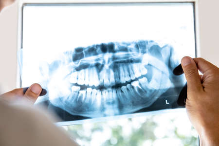doctor examines x-ray picture of human jaw