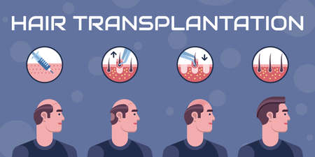 Hair transplantation steps