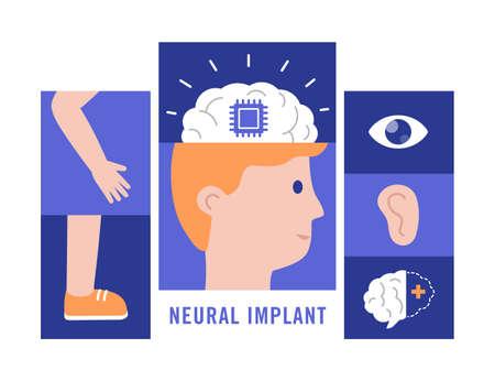 Neural implants flat vector illustration medical concept