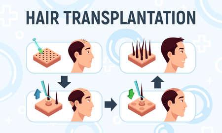 Vector illustration of a hair transplantation procedure