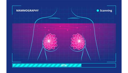 Vector illustration of the process of low-energy X-rays use in human examination Vektoros illusztráció