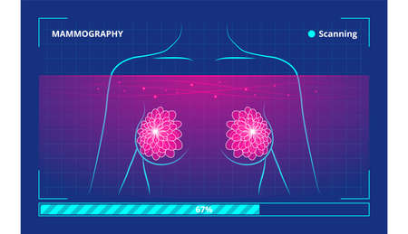 Vector illustration of the process of low-energy X-rays use in human breast examination