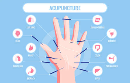 This colorful illustration depicts a person s hand and points that affect various parts of the body and organs