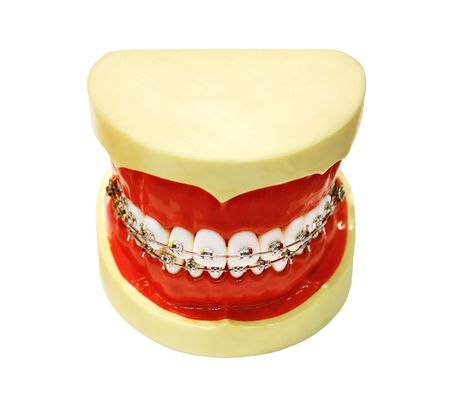 Human tooth jaw with braces isolated over white photo