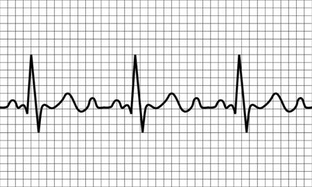 heartbeat icon. ECG Pathology Trace, Vector illustration Illustration