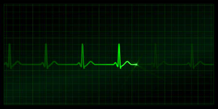 Cardiogram on the monitor. Black background. EPS (8.0) also included Illustration