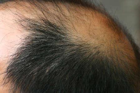 thinning: Closeup of Bald Man