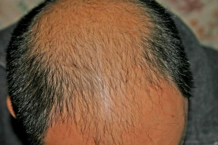 bald head: Male Pattern Baldness Bald Head