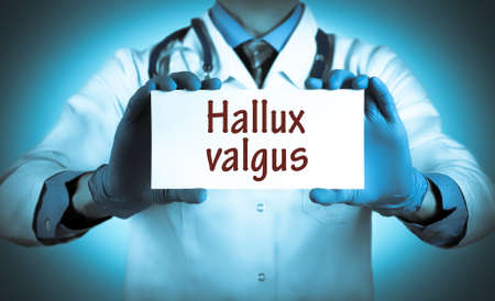 deformity: Doctor keeps a card with the name of the diagnosis � hallux valgus. Selective focus. Medical concept. Stock Photo