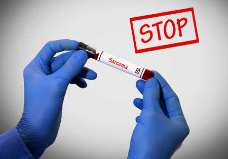 submucosa: Stop sarcoma. Positive result of blood test. Test tube with a blood test in the doctors hands. Medical concept.