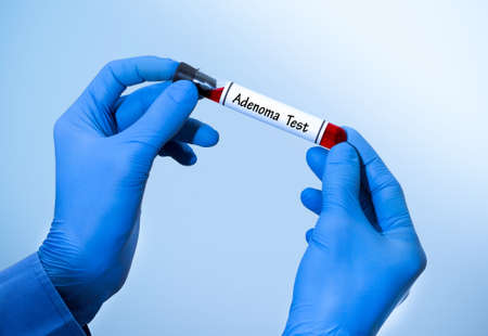 incontinence: Positive result of blood test for adenoma. Test tube with a blood test in the doctors hands. Medical concept.