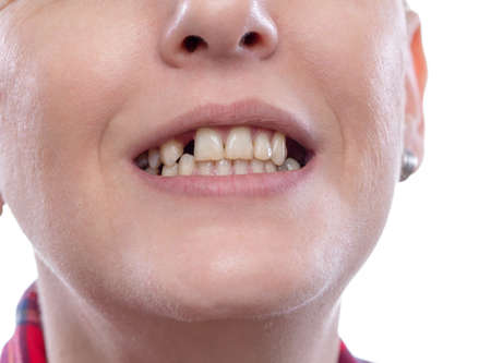 Tooth pain and dentistry, broken teeth – young woman broken teeth damaged cracked front tooth need dentist to fix and repair.
