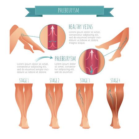 ベクター Phlebology インフォグラフィック。静脈疾患の段階