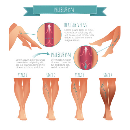 Vector Phlebology infographic. Stage of vein diseases Illustration