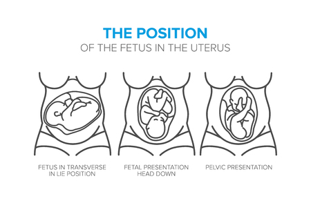 the position of the fetus in the womb