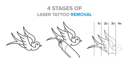 4 Stages of laser tattoo removal illustration, vector icons for your design Illustration
