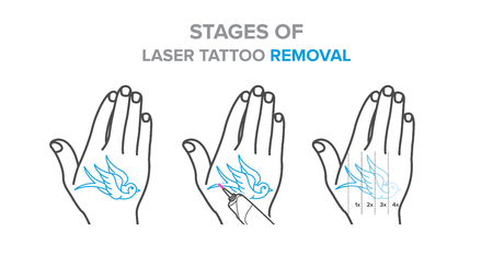 Stages of laser tattoo removal illustration, vector icons. For your design Illustration