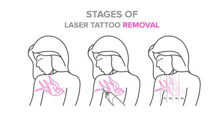 Stages of laser tattoo removal, vector illustrations. For your design Illustration