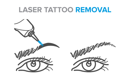 Eyebrow removal procedure, laser tattoo removal icons, microblading. Illustration for your design Illustration