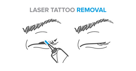 Eyeliner removal procedure, laser tattoo removal icons, microblading. Illustration for your design