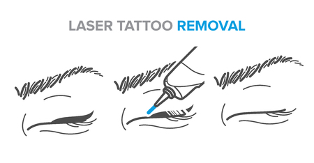 laser tattoo removal, permanent makeup removal, microblading. Illustration for your design